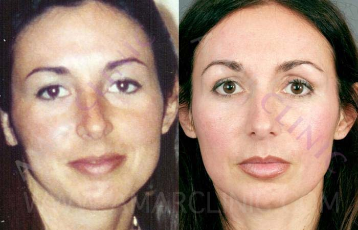 FAMI natural facelift brings restores a youthful look to the face