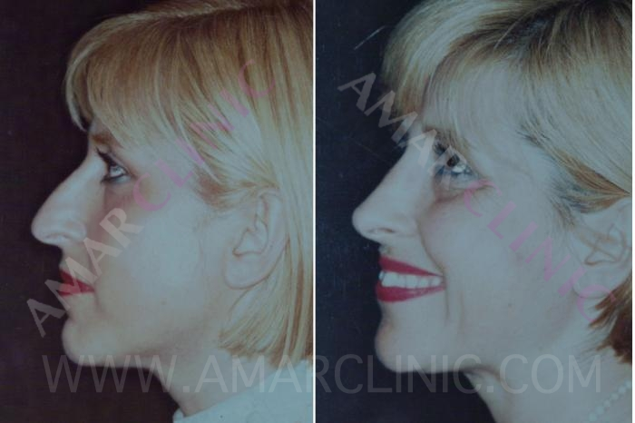 Nose surgery at London FAMI Clinic