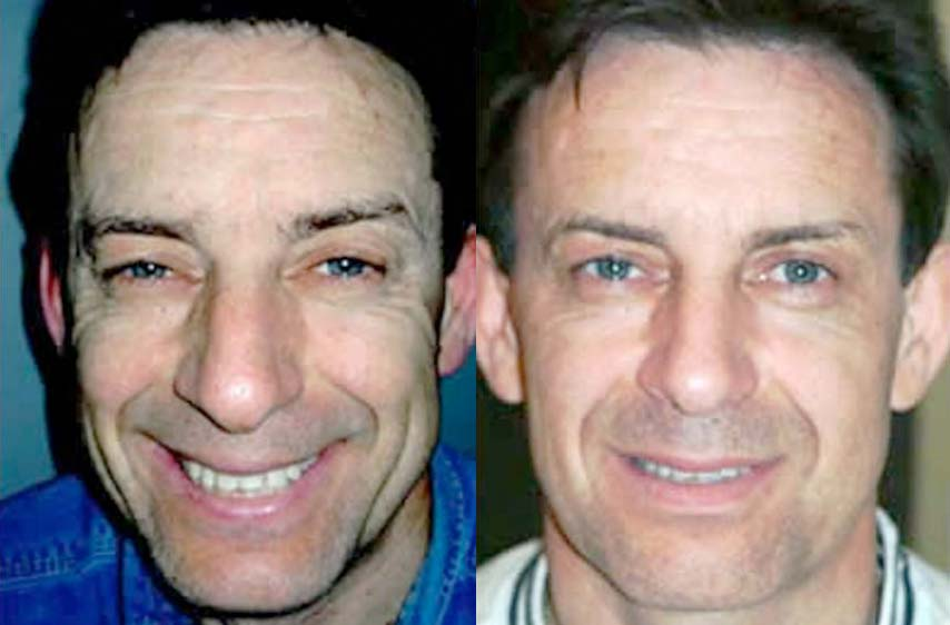 London non-surgical facelift for men