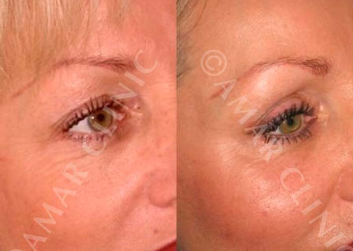 Non-surgical eye rejuvenation with FAMI