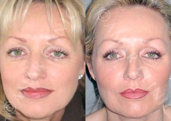 FAMI facelift results