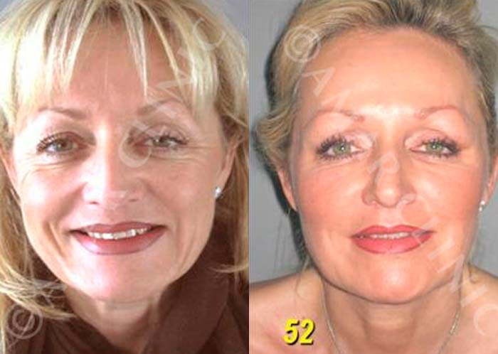 FAMI natural facelift procedure results for London patient