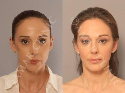 FAMI non-surgical facelift one