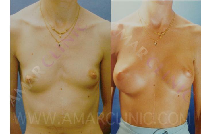 Breast Augmentation available at London & Marbella