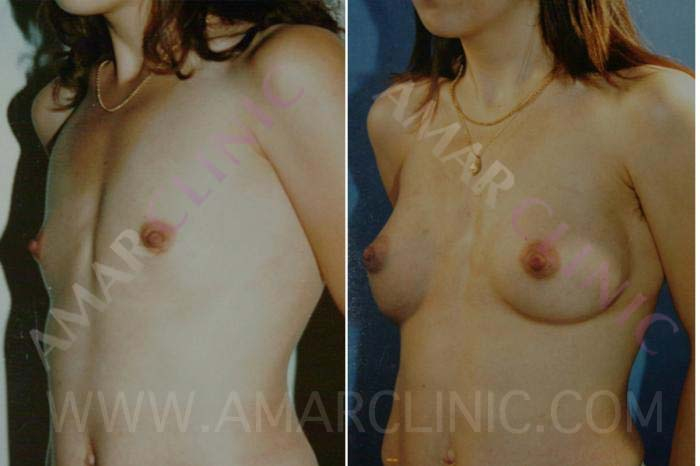 Breast augmentation to treat breast aplasia from London FAMI Clinic