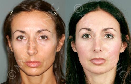London FAMI Clinic non-surgical facelift
