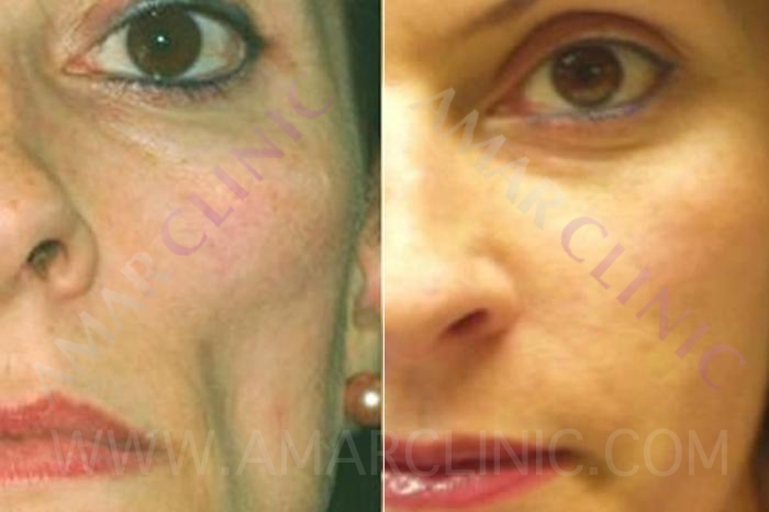 Improvement in eye area with FAMI technique