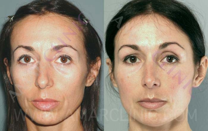 FAMI non-surgical facelift to combat muscle and bone loss