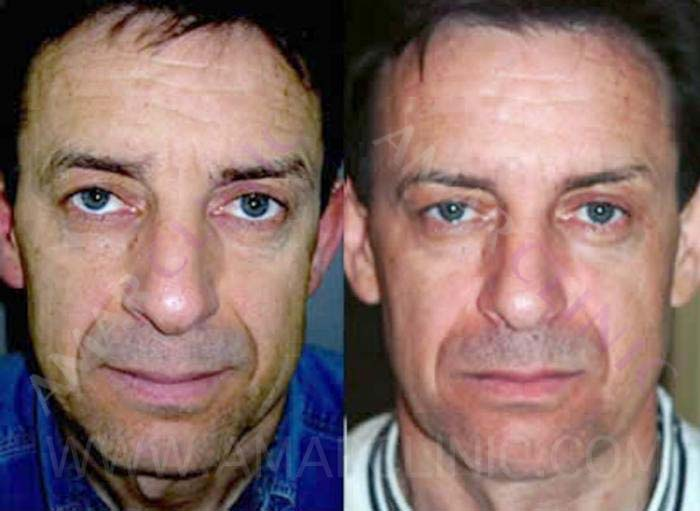 Natural facelift with stem cells