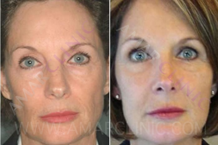 FAMI Facelift to reverse all signs of ageing