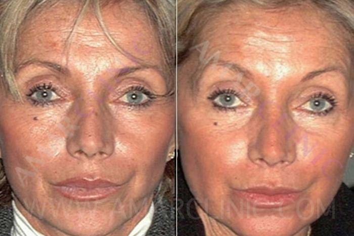 Improvement in skin texture with stem cell facelift
