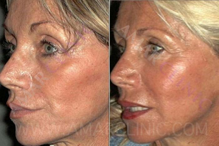 Stem Cell facelift results