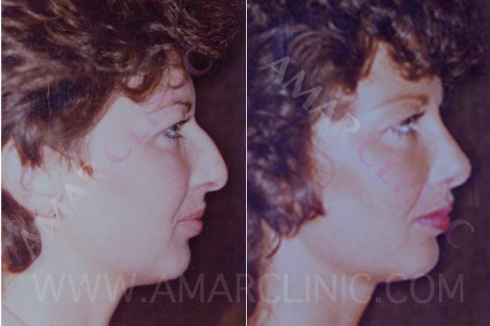Rhinoplasty results in profile