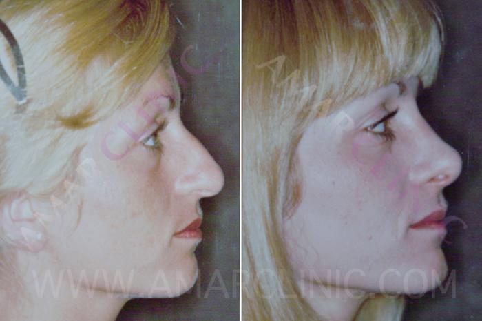 063148_rhinoplasty_nosejob_cosmetic_0011